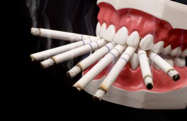 Studio clinico dimostra che il fumo influisce negativamente sulla guarigione nei pazienti con parodontite